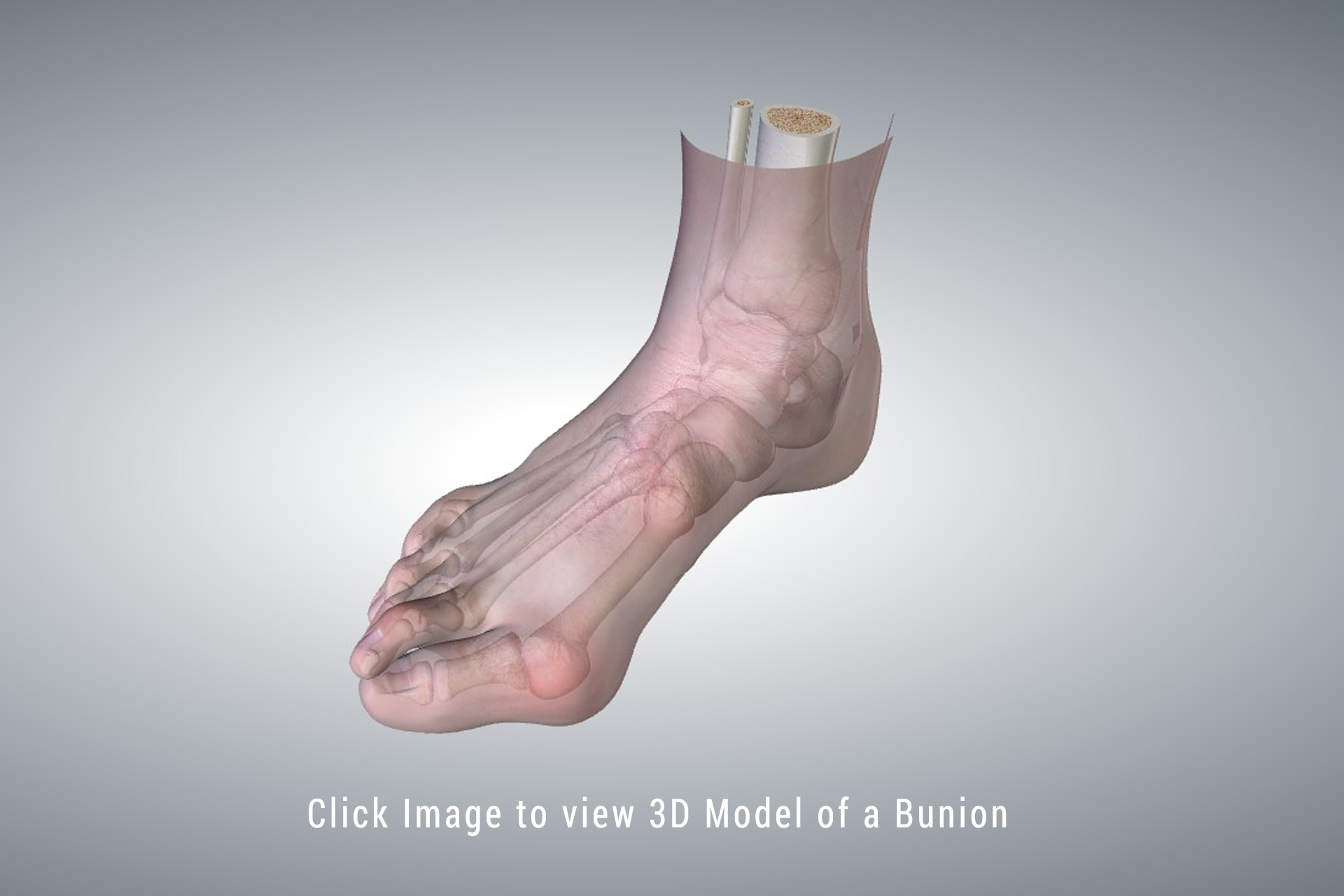 3d Model of Bunion