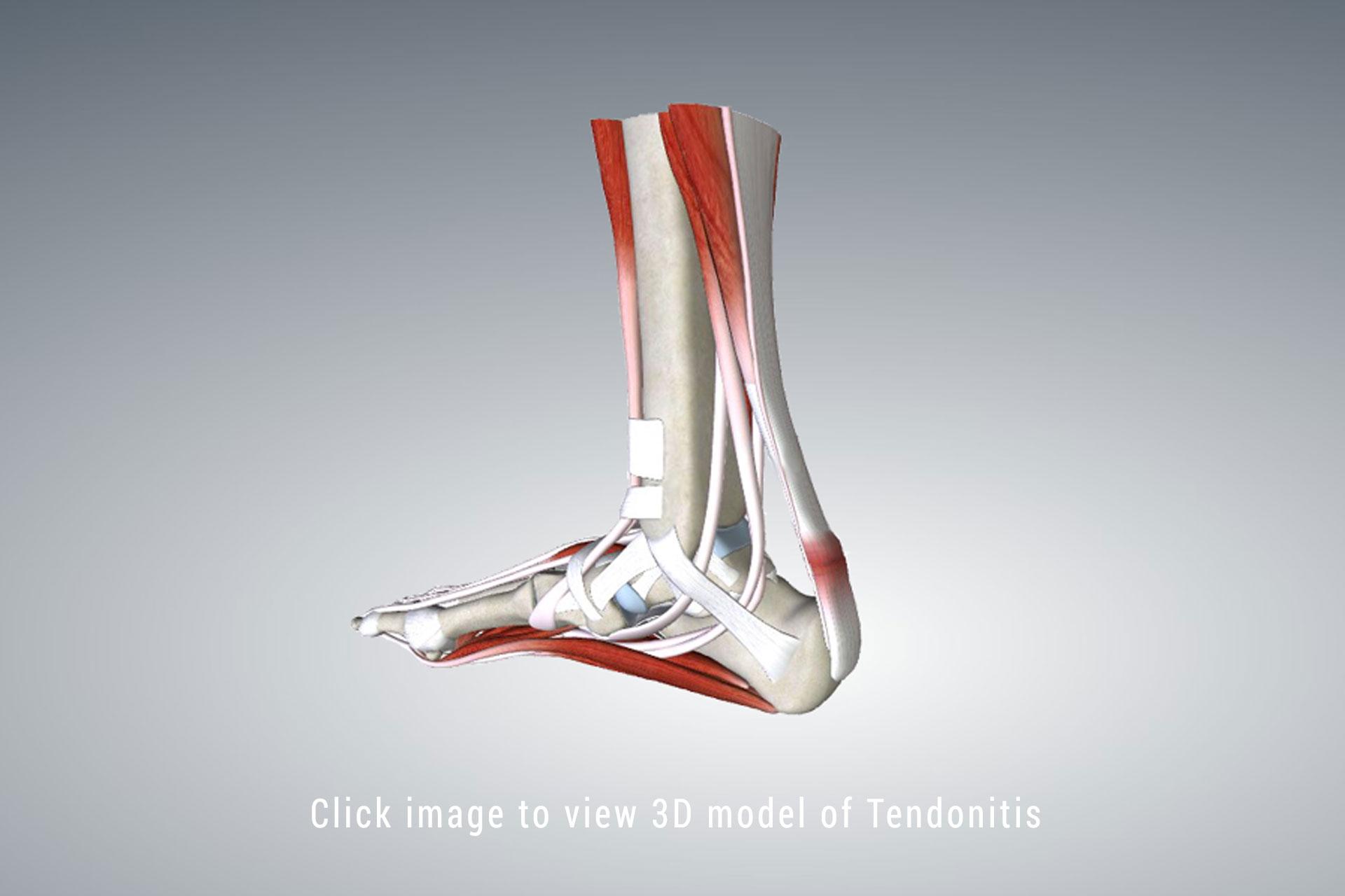 Heel Tendonitis