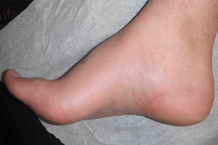 Image of High Arch Foot